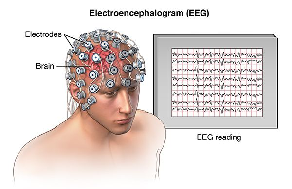 Picture showing the main components of an electroencephalogram (EEG): electrodes attached to a person's head and a display showing brainwaves. Image via Bright Brain Centre.